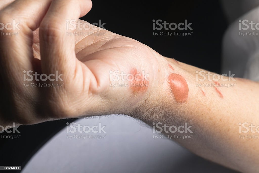 Woman arm with actual second degree burn royalty-free stock photo
