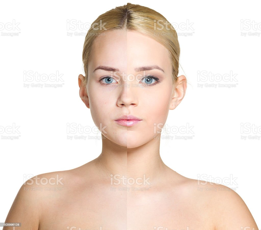 Woman before and after cosmetic treatment stock photo