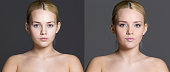 Woman before and after cosmetic treatment