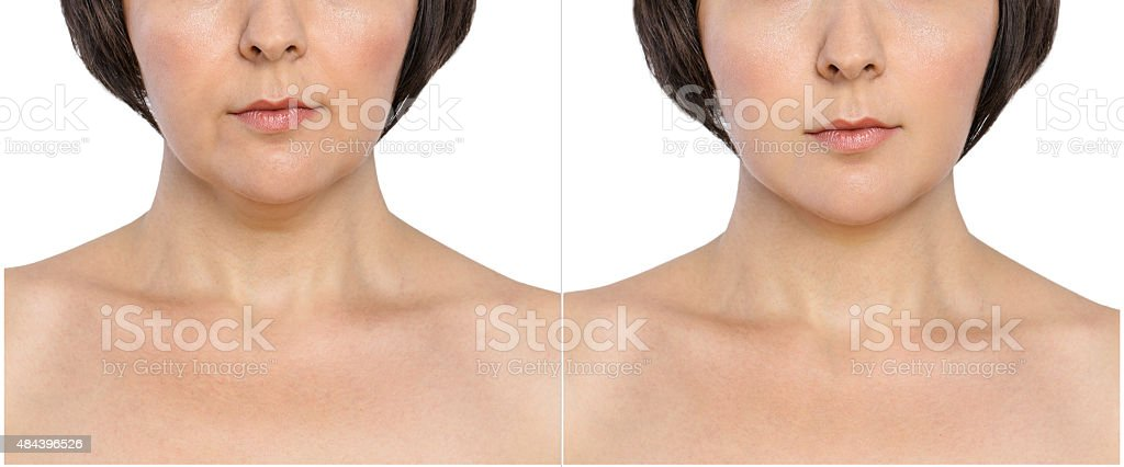 Woman before and after lifting of double chin stock photo
