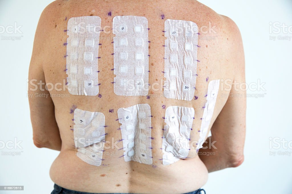 Woman being tested with allergy patches stock photo
