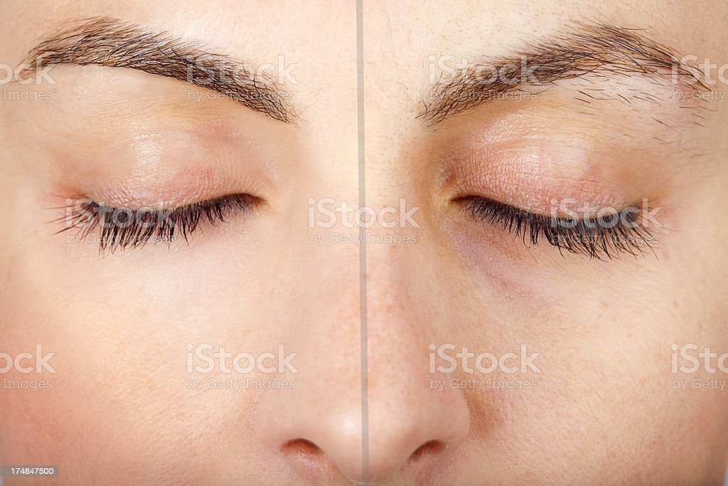 Woman eyebrow is need pluck Before/After stock photo