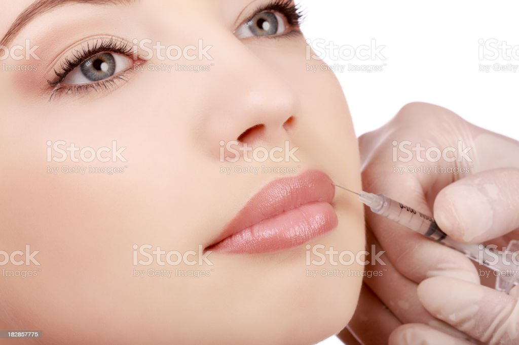 A woman getting a botex injection in her top lip  royalty-free stock photo