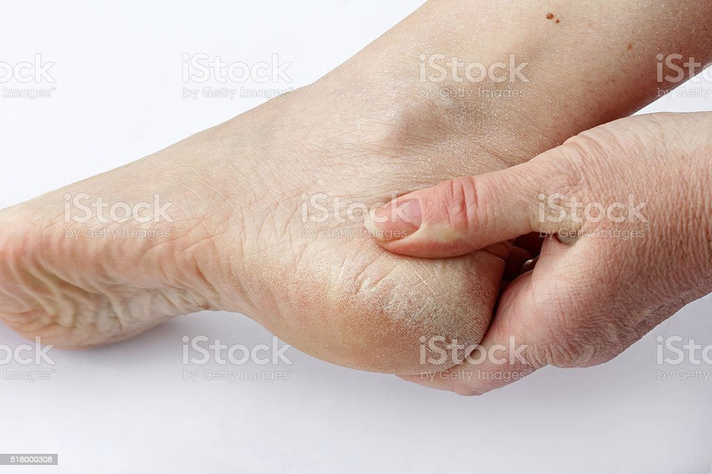 woman has dry skin and calluses on the feet stock photo