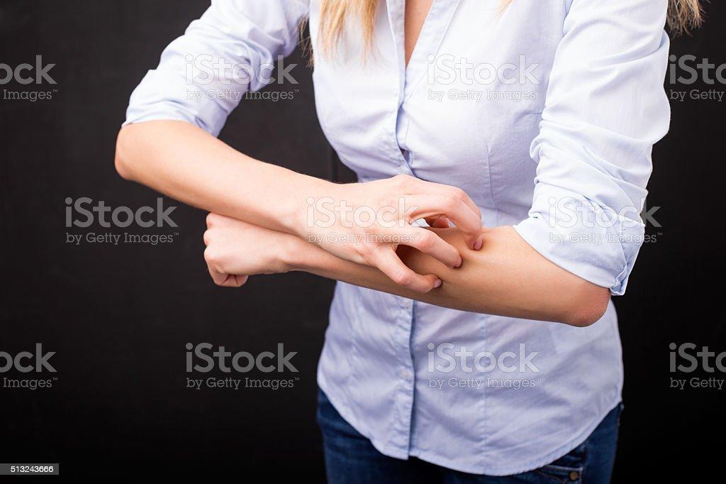 Woman having an allergic reaction stock photo