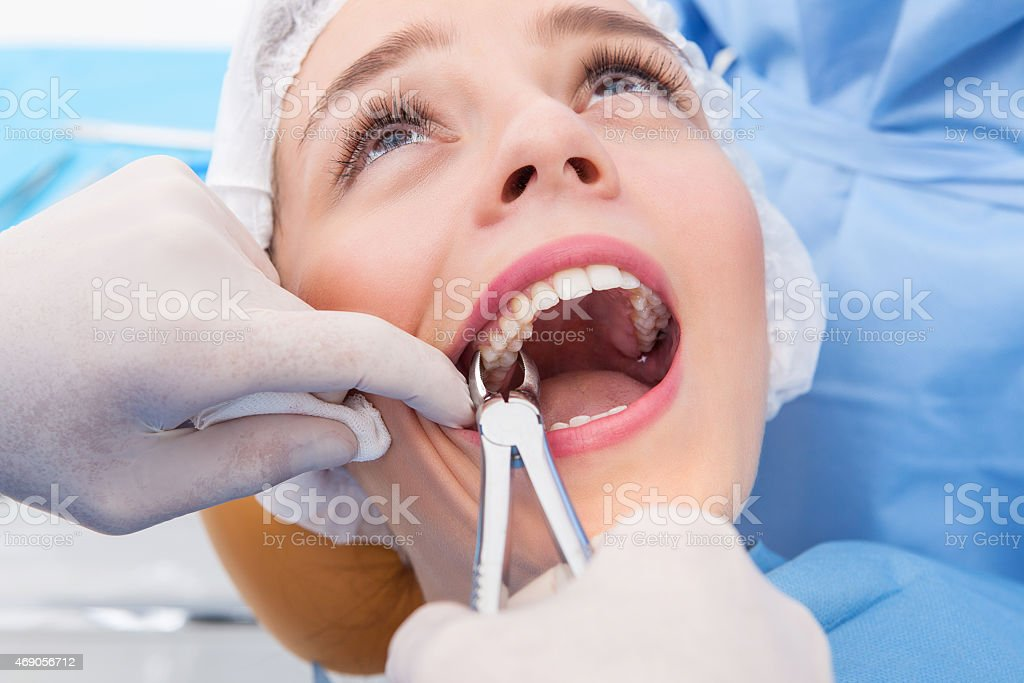 Woman having tooth removed stock photo
