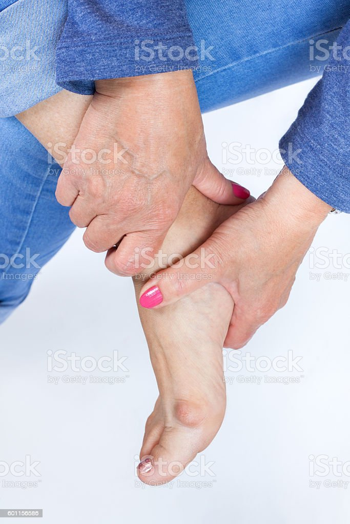 woman holding a foot with painful bunion stock photo