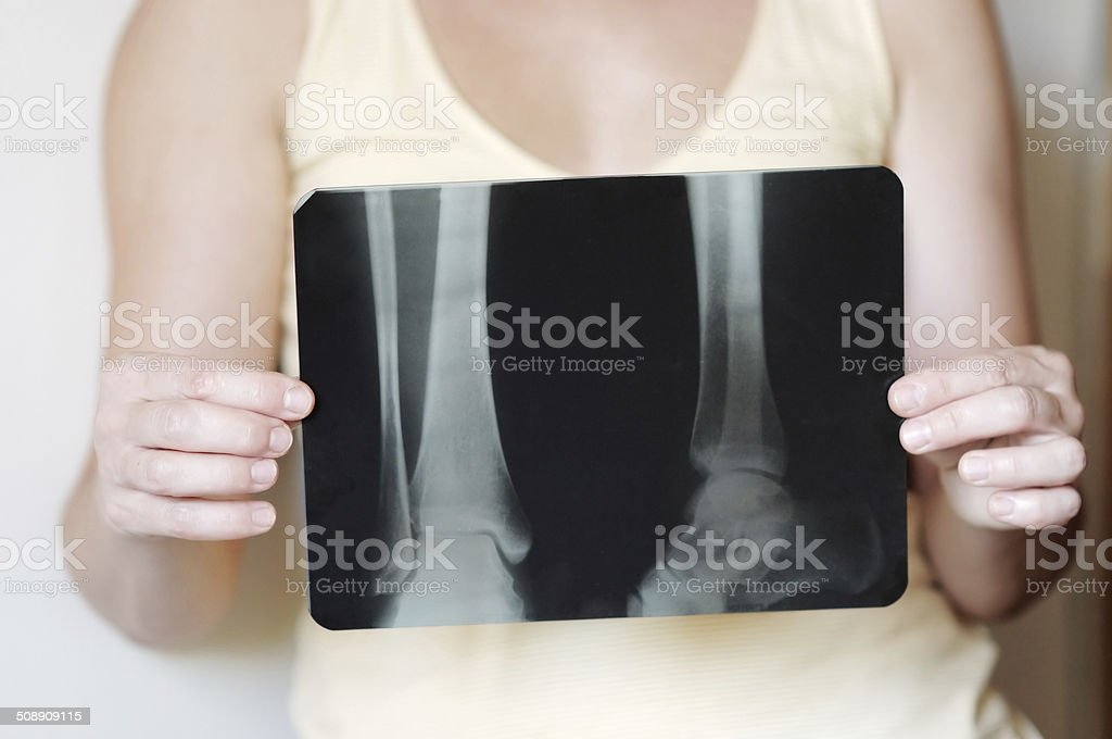 Woman holding an x-ray image stock photo