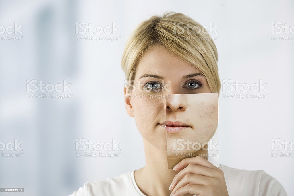 Woman holding image with problematic skin stock photo