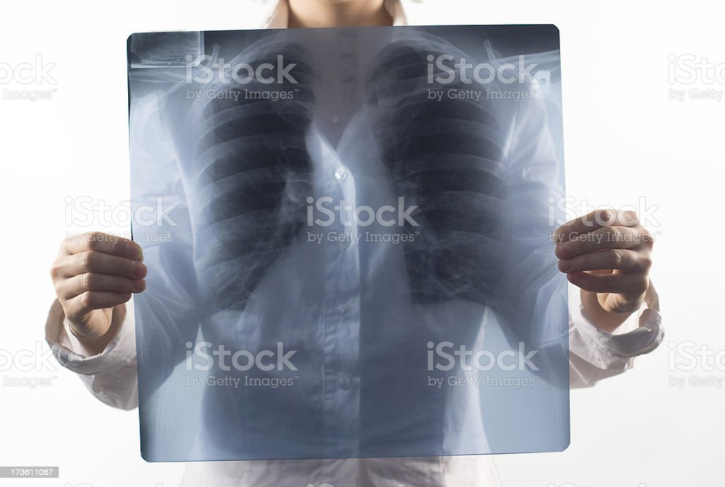 Woman holds X-ray lung royalty-free stock photo