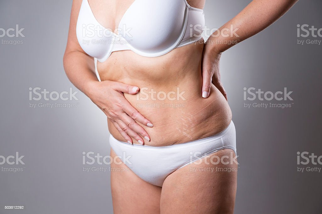 Woman in a white bra and  panties with abdominal pain stock photo