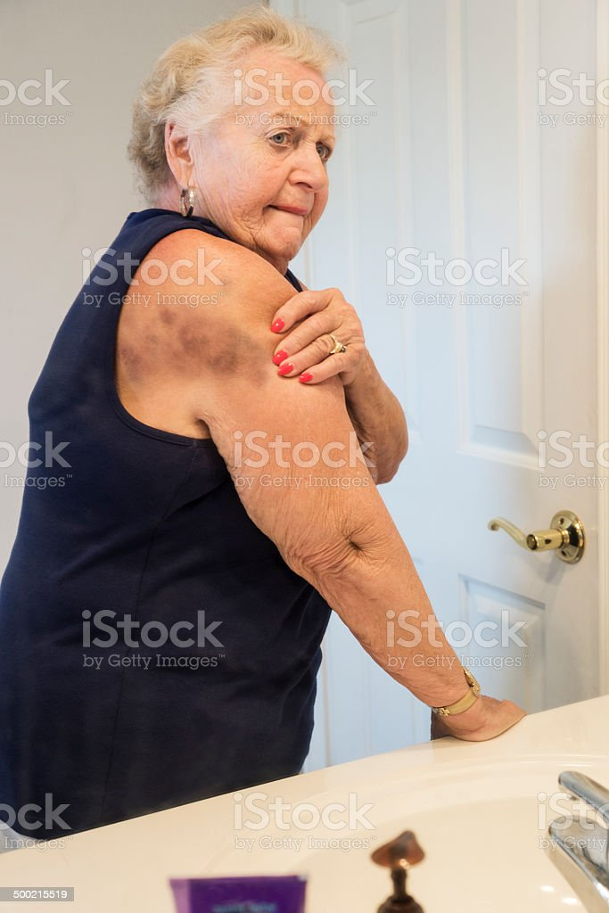 Woman looking at her large bruise stock photo