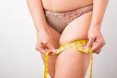 Woman measuring her leg's fat