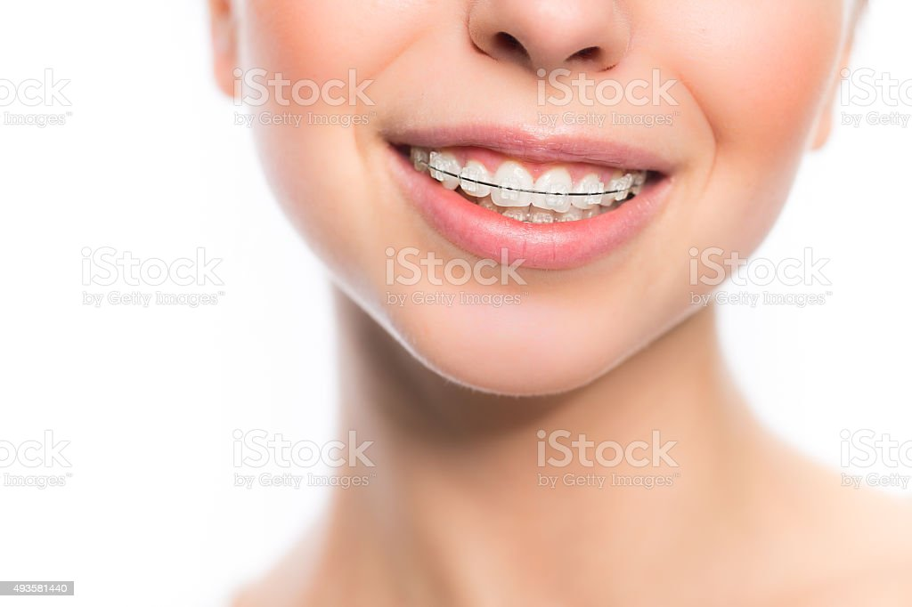 Woman mouth with teeth braces stock photo