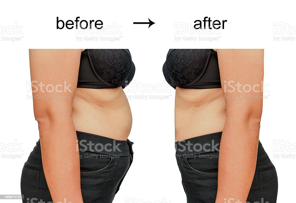 Woman posing for before and after shots for a diet stock photo