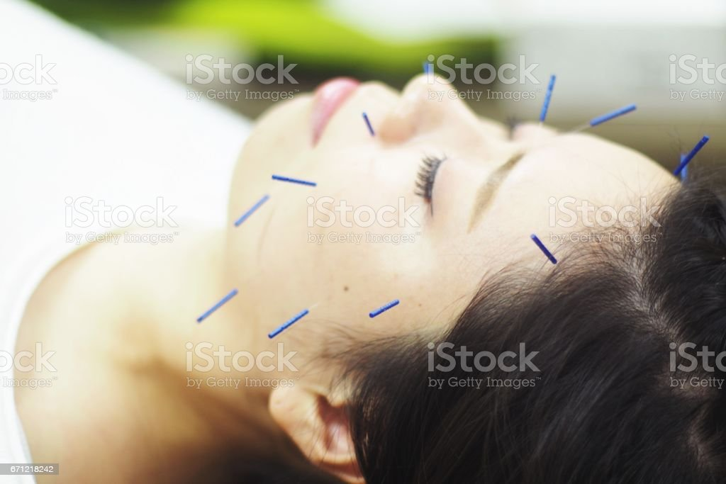 Woman receiving acupuncture on face stock photo