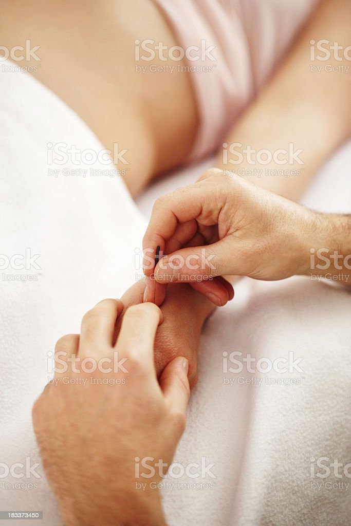 Woman receiving acupuncture royalty-free stock photo