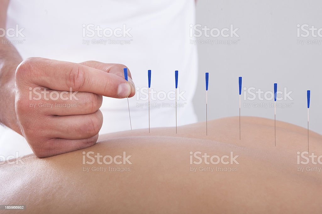 Woman Receiving An Acupuncture Therapy stock photo