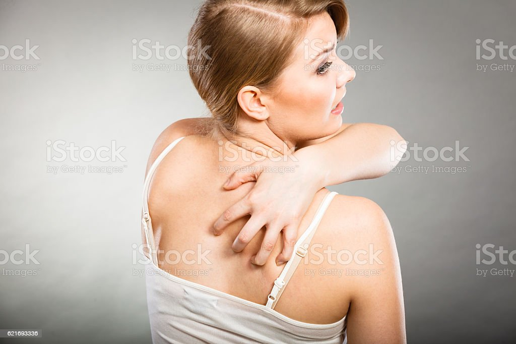 woman scratching her itchy back with allergy rash stock photo