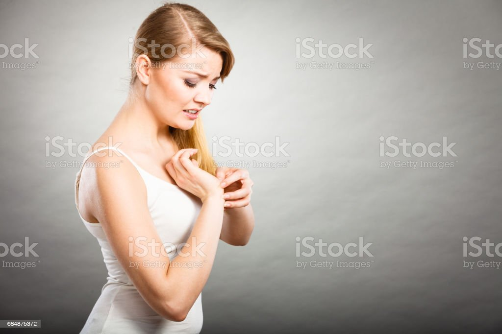 Woman scratching her itchy wrist with allergy rash stock photo