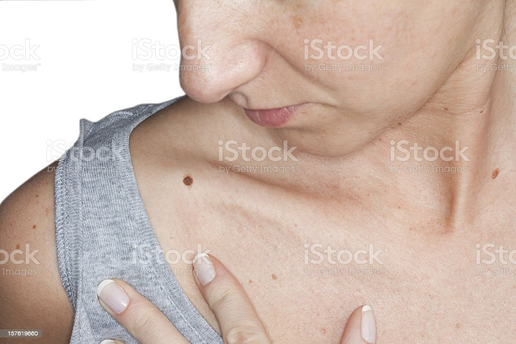 Woman self-examining skin for potential cancerous growths royalty-free stock photo