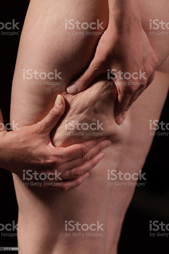 Woman showing cellulite on thigh stock photo