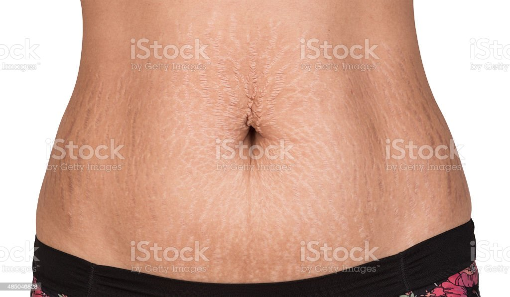 Woman showing stretch marks. stock photo