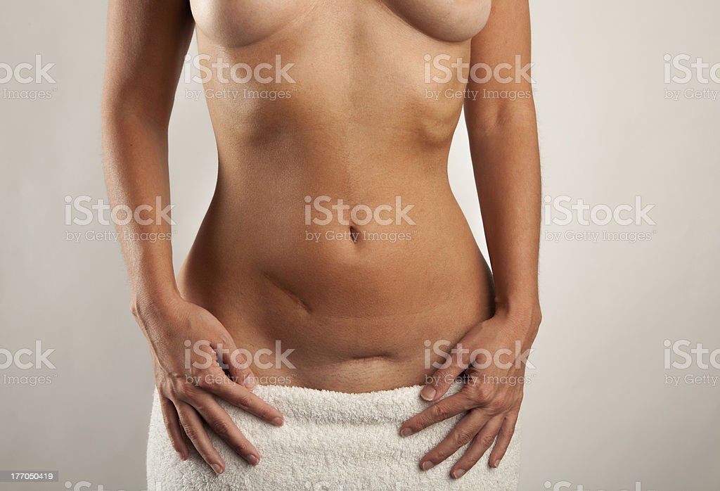 Woman showing two abdominal scars stock photo