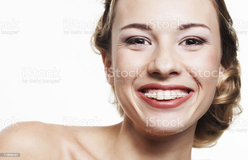 Woman smiling wearing dental braces stock photo