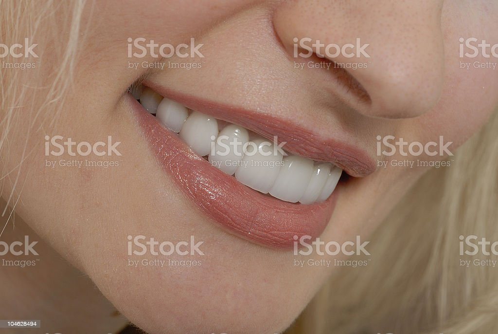 A woman smiling who has a new set of veneers in  royalty-free stock photo