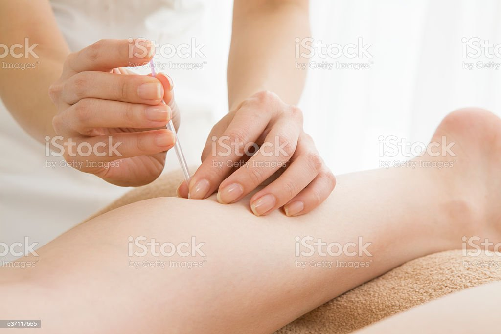 Woman striking acupuncture in a calf stock photo