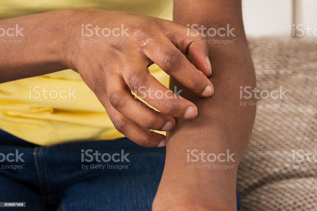 Woman Suffering From Itching stock photo