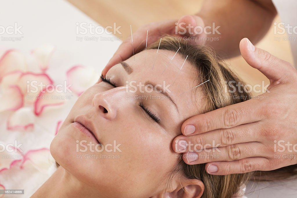 Woman undergoing acupuncture treatment and a massage  stock photo