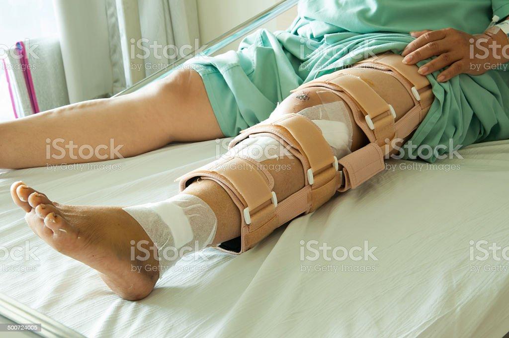 woman wearing a leg brace, Broken leg stock photo