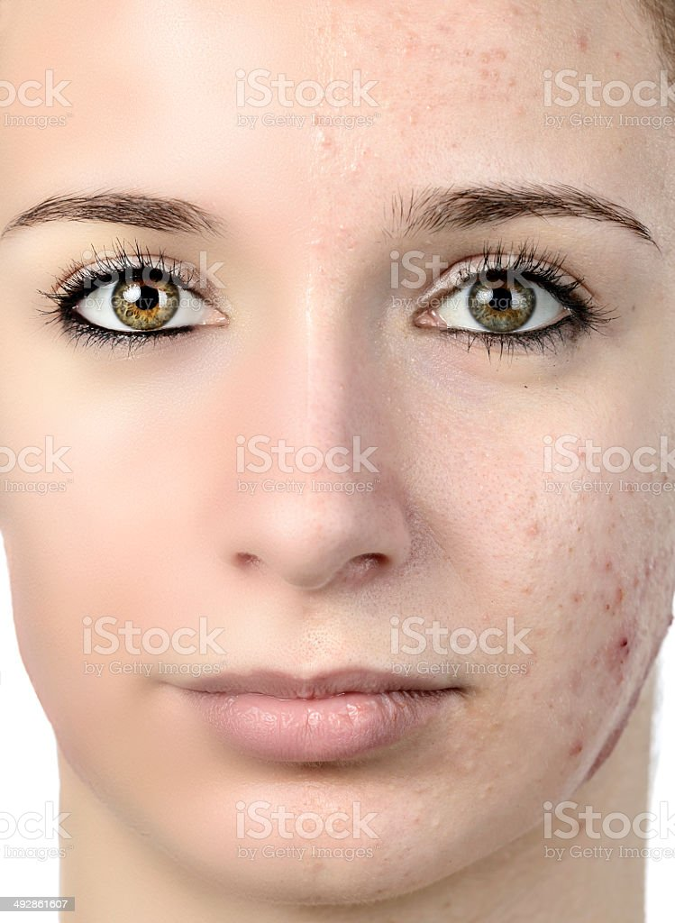 woman with acnee stock photo