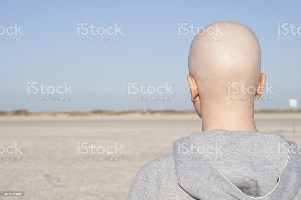 Woman with bald head looking into distance royalty-free stock photo