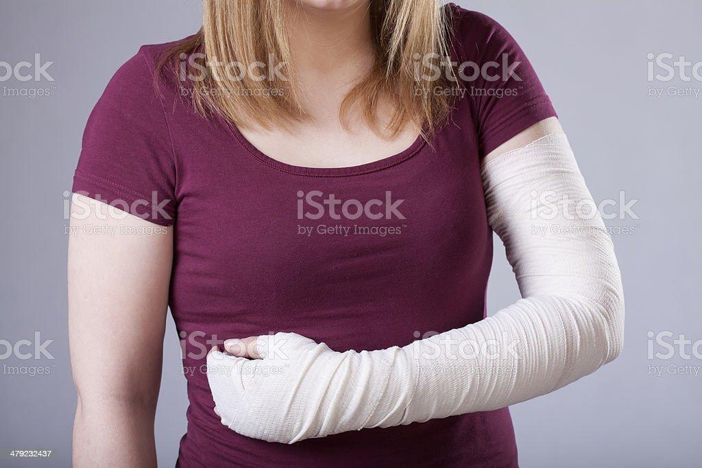Woman with bandaged arm stock photo