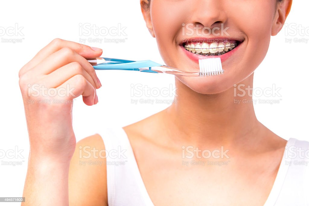 Woman with braces stock photo