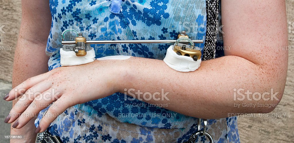 Woman with broken arm. stock photo