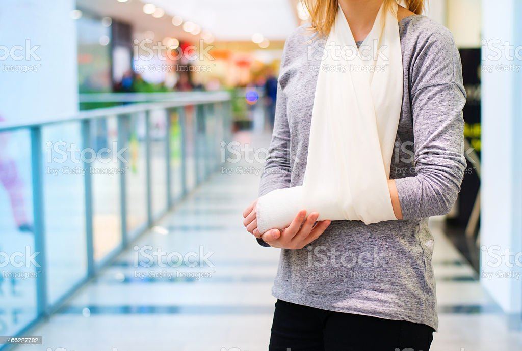Woman with broken arm stock photo