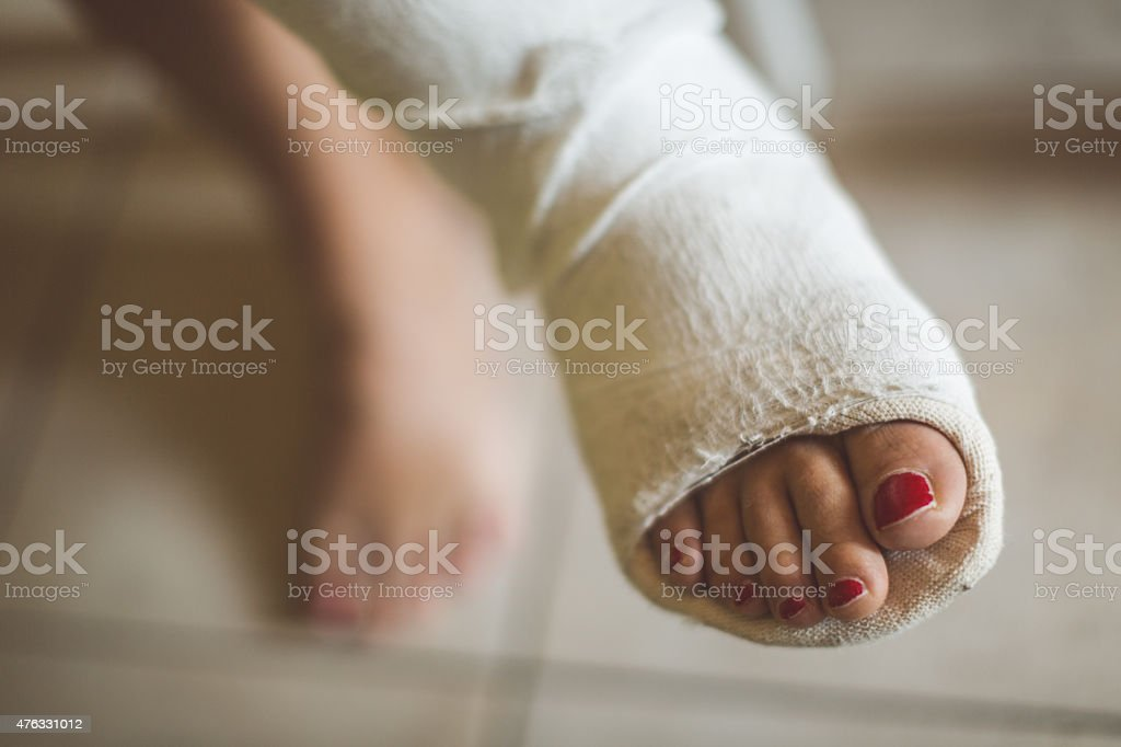 Woman with broken leg stock photo