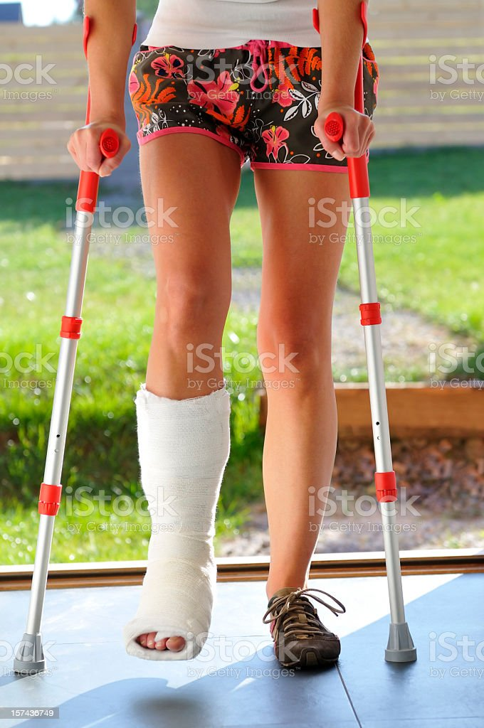 Woman with broken leg, twisted ankle, bandage, walking on crutches stock photo