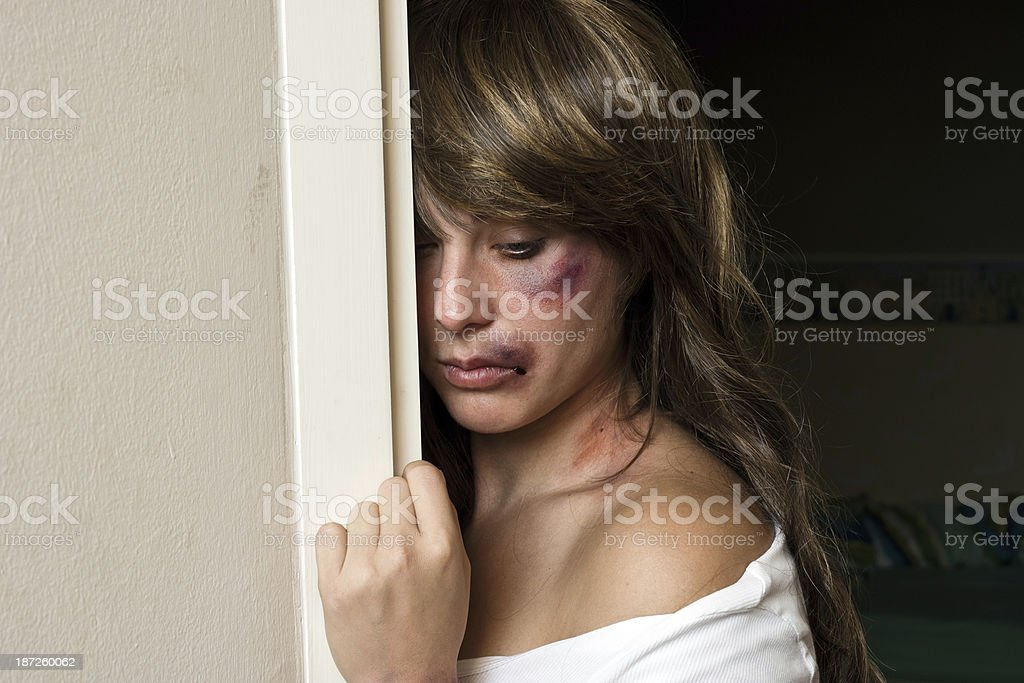 woman with bruises hiding behind wall stock photo