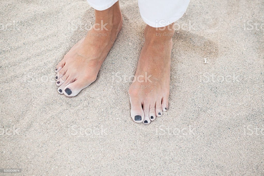 Woman with Bunions Standing Barefoot in Sand stock photo