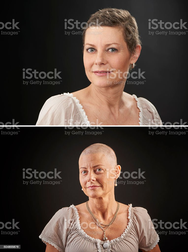 Woman with cancer in chemotheraphy after and before stock photo