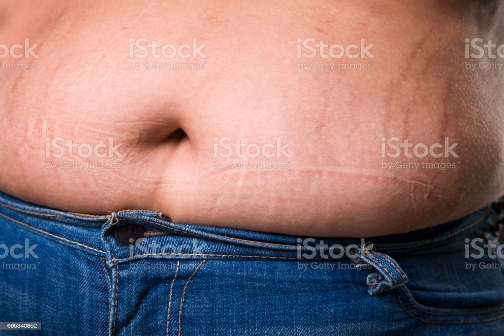 Woman with fat abdomen in blue jeans, overweight female stomach,...