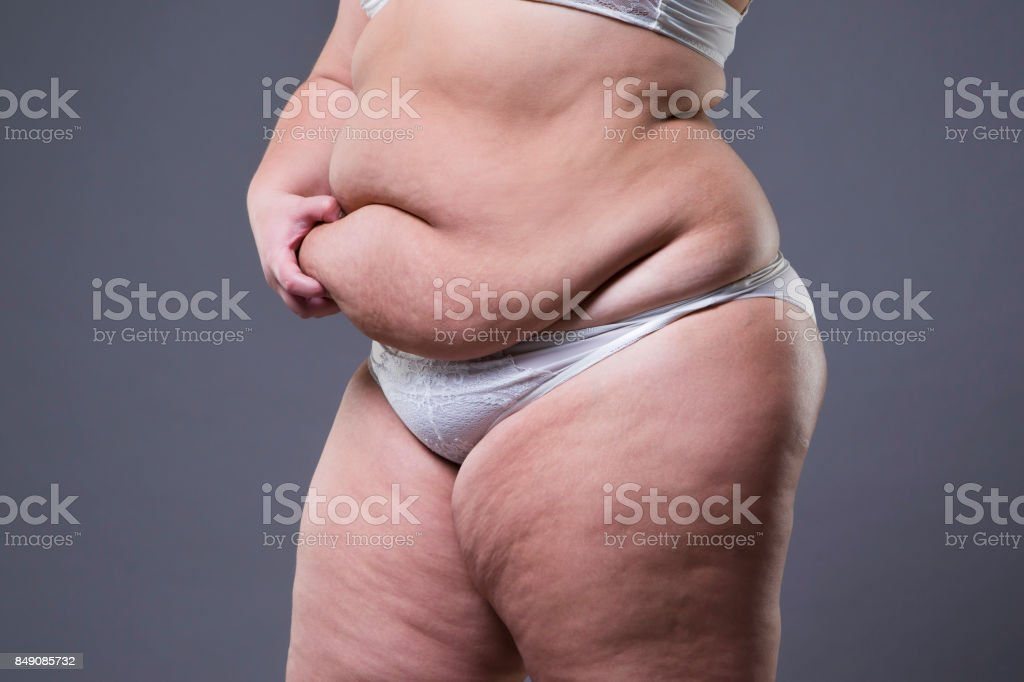 Woman with fat abdomen, overweight female stomach on gray background