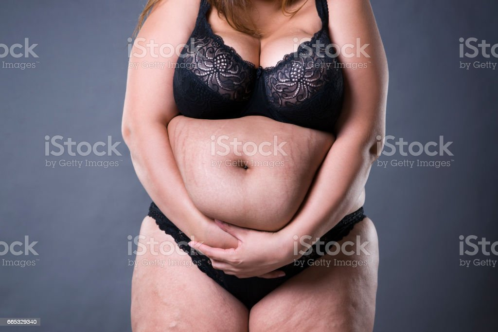 Woman with fat abdomen, overweight female stomach, stretch marks on...