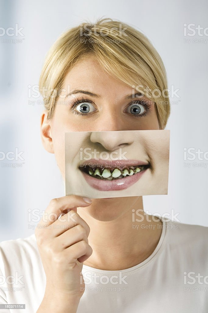 woman with image of rotten teeth stock photo