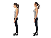 Woman with impaired posture position defect scoliosis and ideal bearing